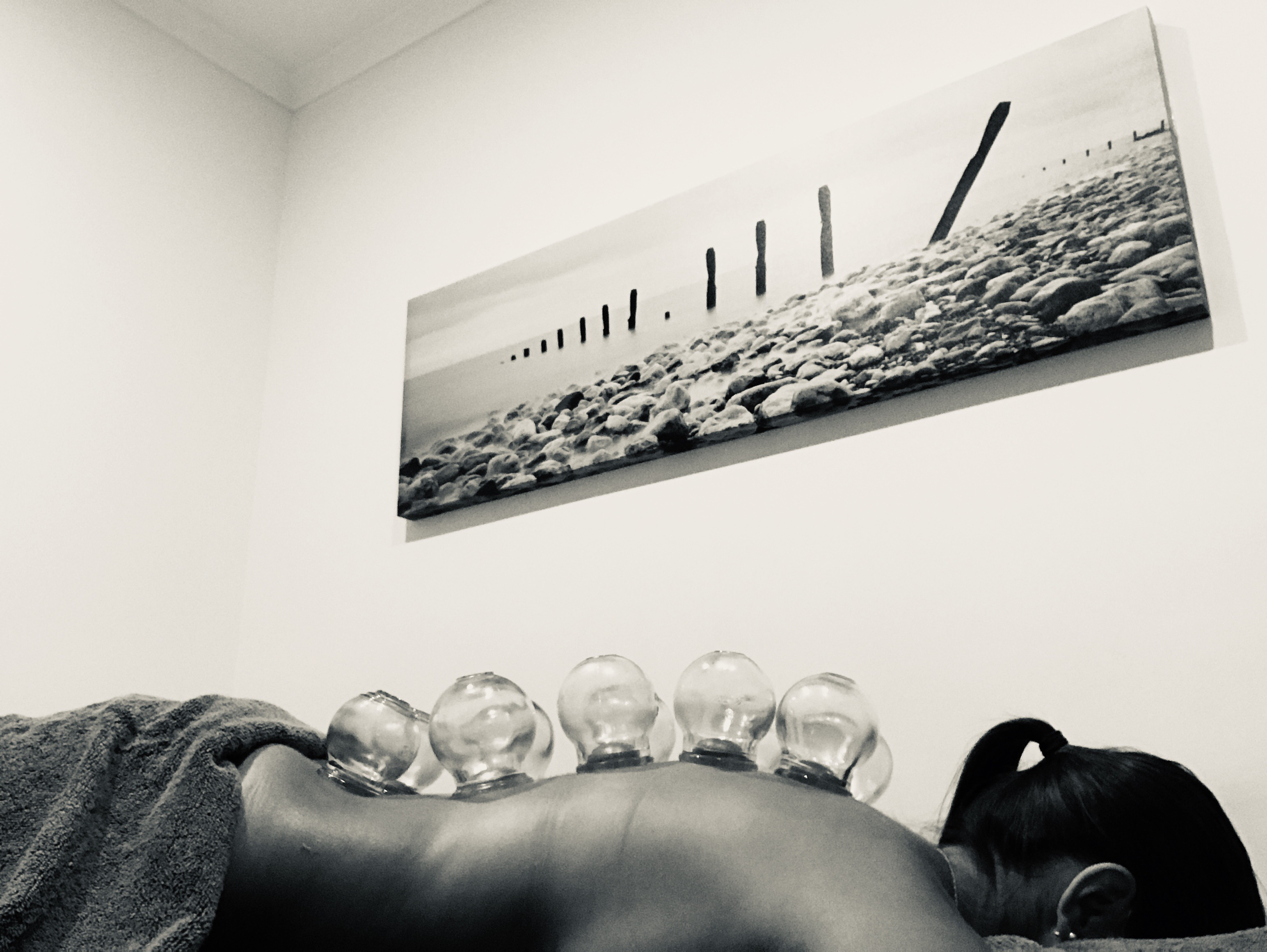 Cupping, luminescence acupuncture, back pain, Chinese Medicine Sydney
